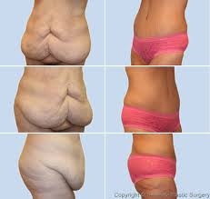 Excess Skin Problems With Weight Loss